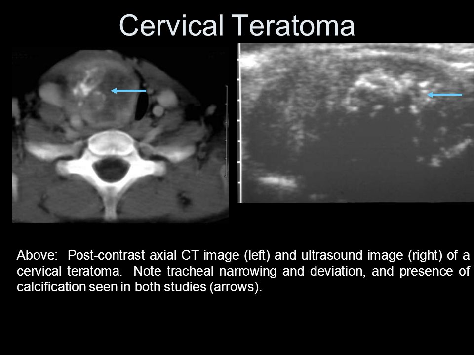 Cervical Teratoma Above: Post-contrast axial CT image (left) and ultrasound image (right) of a cervical teratoma.
