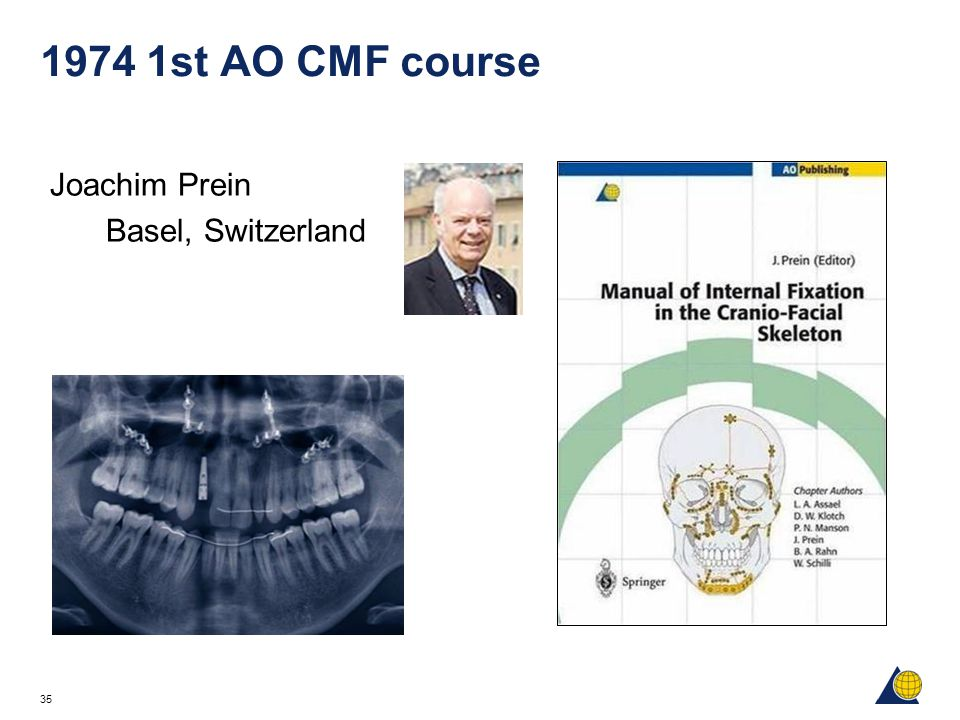 35 1974 1st AO CMF course Joachim Prein Basel, Switzerland