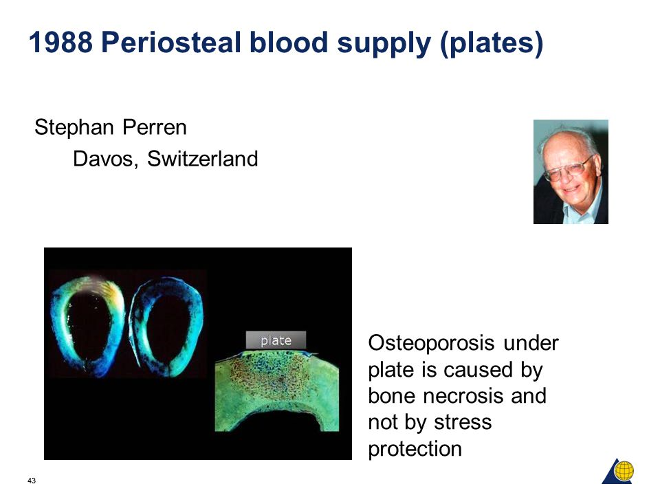 43 1988 Periosteal blood supply (plates) Stephan Perren Davos, Switzerland Osteoporosis under plate is caused by bone necrosis and not by stress protection
