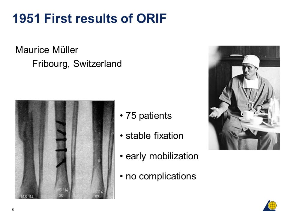 5 1951 First results of ORIF Maurice Müller Fribourg, Switzerland 75 patients stable fixation early mobilization no complications