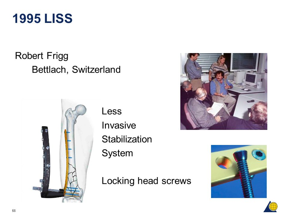 56 1995 LISS Robert Frigg Bettlach, Switzerland Less Invasive Stabilization System Locking head screws