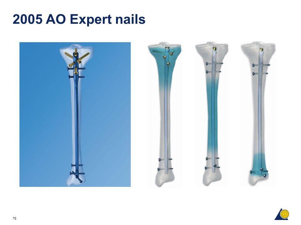 75 2005 AO Expert nails