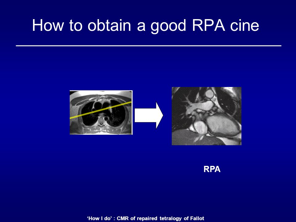 'How I do' : CMR of repaired tetralogy of Fallot How to obtain a good RPA cine RPA
