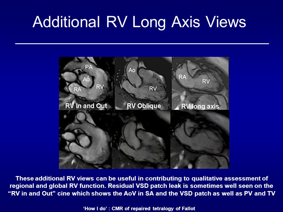 'How I do' : CMR of repaired tetralogy of Fallot Additional RV Long Axis Views These additional RV views can be useful in contributing to qualitative assessment of regional and global RV function.