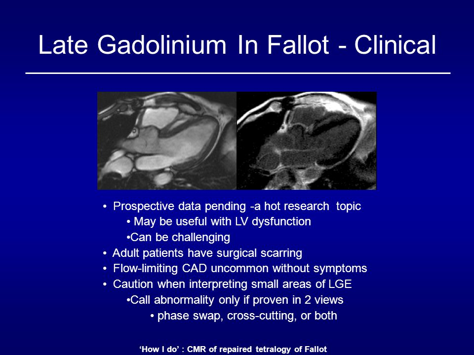 'How I do' : CMR of repaired tetralogy of Fallot Late Gadolinium In Fallot - Clinical Prospective data pending -a hot research topic May be useful wit