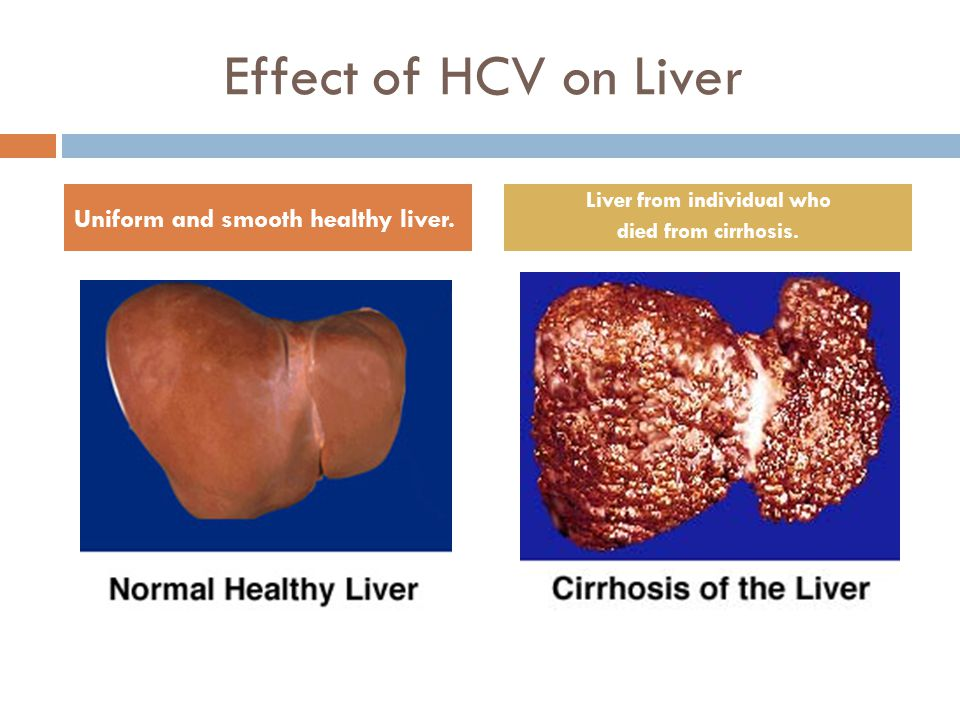  Challenges in Modern Drug Discovery: A Case Study of Boceprevir, an HCV Protease Inhibitor for the Treatment of Hepatitis C Virus Infection F.