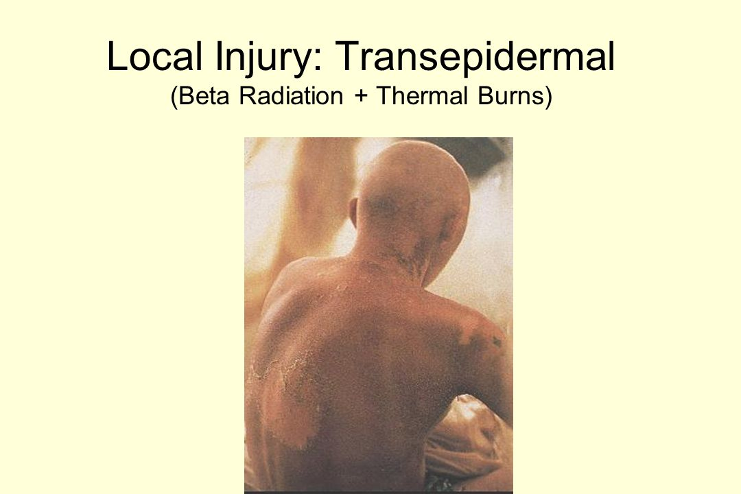 Local Radiation Injury Therapy Analgesics, Antipruritics Anti-inflammatories Antibiotics as needed Skin Growth Factors Synthetic Occlusive Dressings Surgical Intervention: –Debridement –Excision and Grafting –Amputation