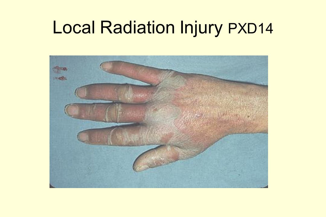 Local Radiation Injury PXD 22
