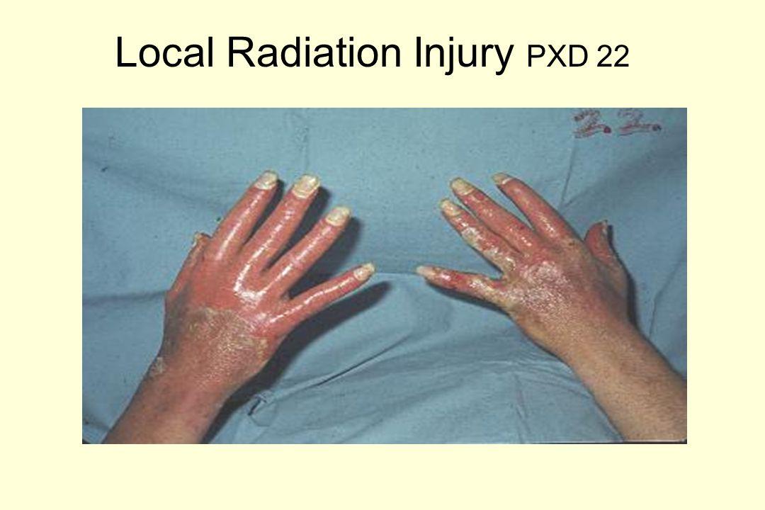 Local Radiation Injury PXD 90