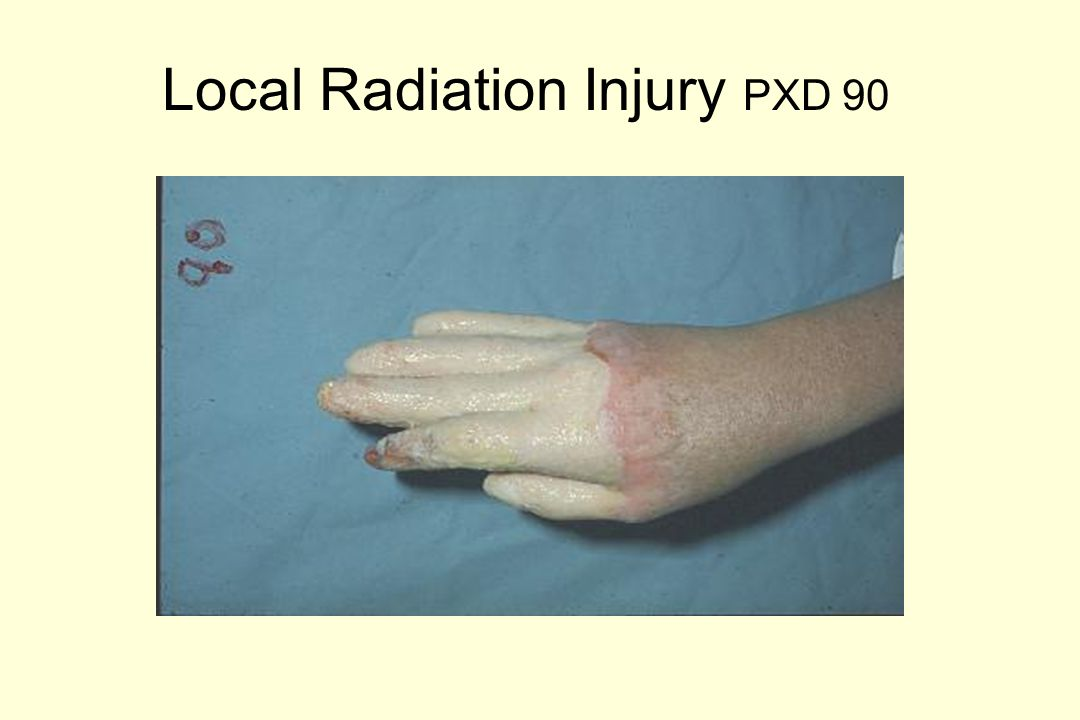 Local Radiation Injury Therapy AMPUTATION STAGES Upper Extremities 5 mo 4 mo 5 mo 6 mo 5 mo 7 mo 7 mo 10 mo 17 mo 12 mo RightLeft