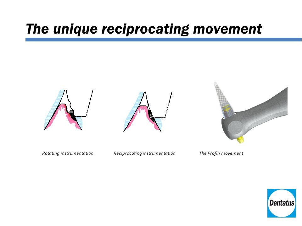 The unique reciprocating movement Rotating instrumentationReciprocating instrumentationThe Profin movement