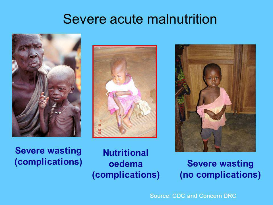Source: CDC and Concern DRC Severe wasting (complications) Severe acute malnutrition Nutritional oedema (complications) Severe wasting (no complications)