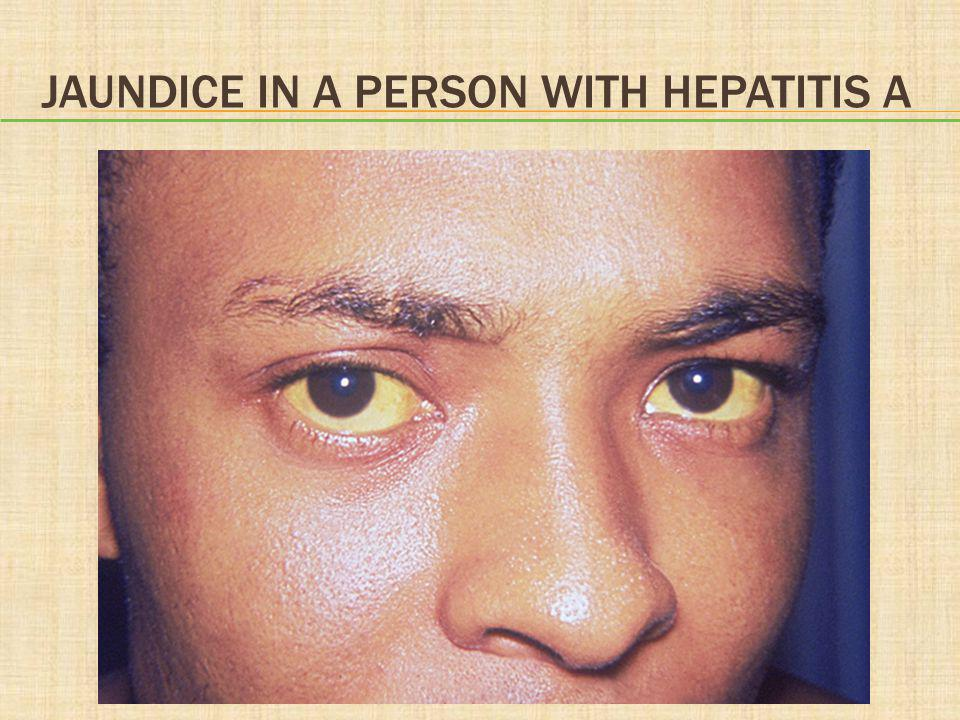 JAUNDICE IN A PERSON WITH HEPATITIS A