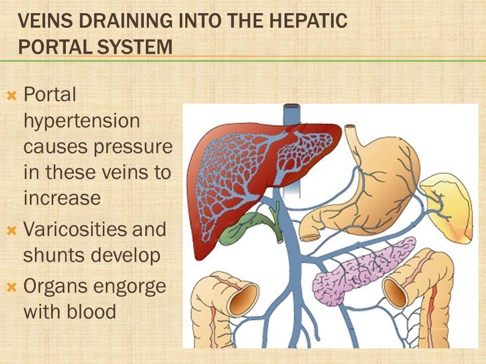 VEINS DRAINING INTO THE HEPATIC PORTAL SYSTEM  Portal hypertension causes pressure in these veins to increase  Varicosities and shunts develop  Org