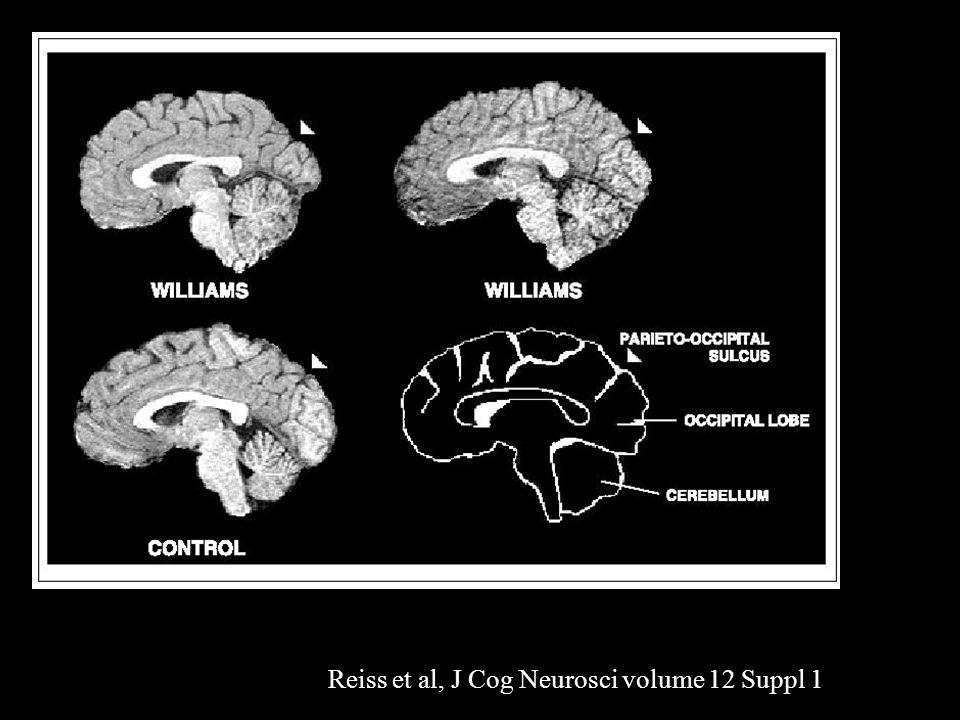 Reiss et al, J Cog Neurosci volume 12 Suppl 1