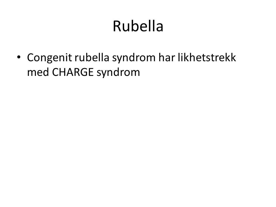 Rubella Congenit rubella syndrom har likhetstrekk med CHARGE syndrom