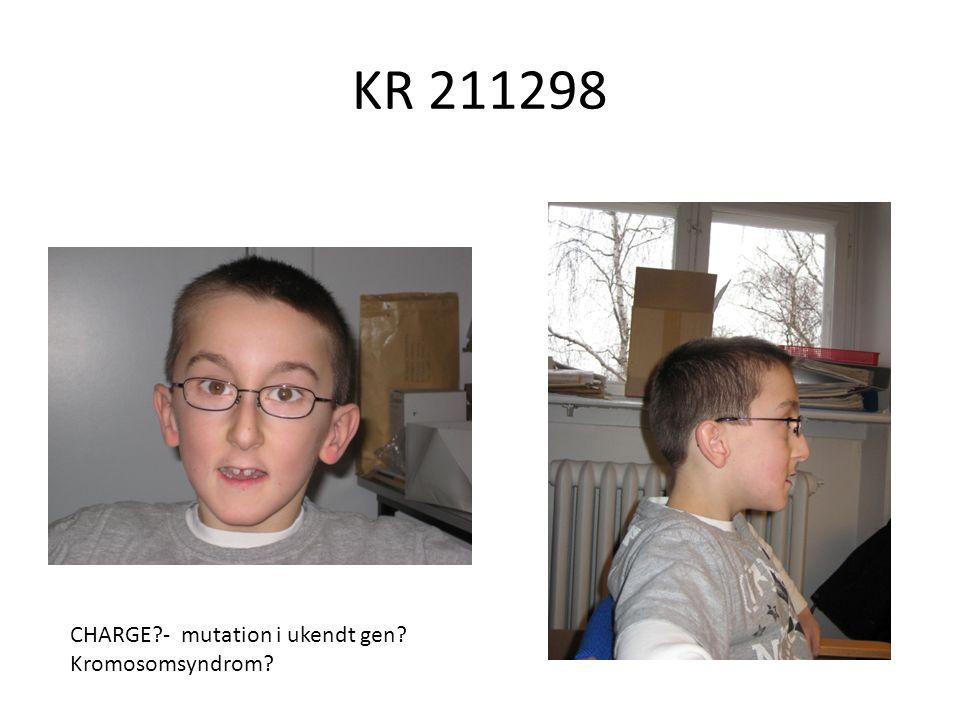 KR 211298 CHARGE - mutation i ukendt gen Kromosomsyndrom