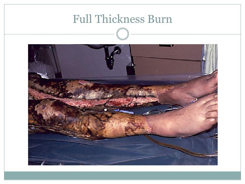 Full Thickness Burn
