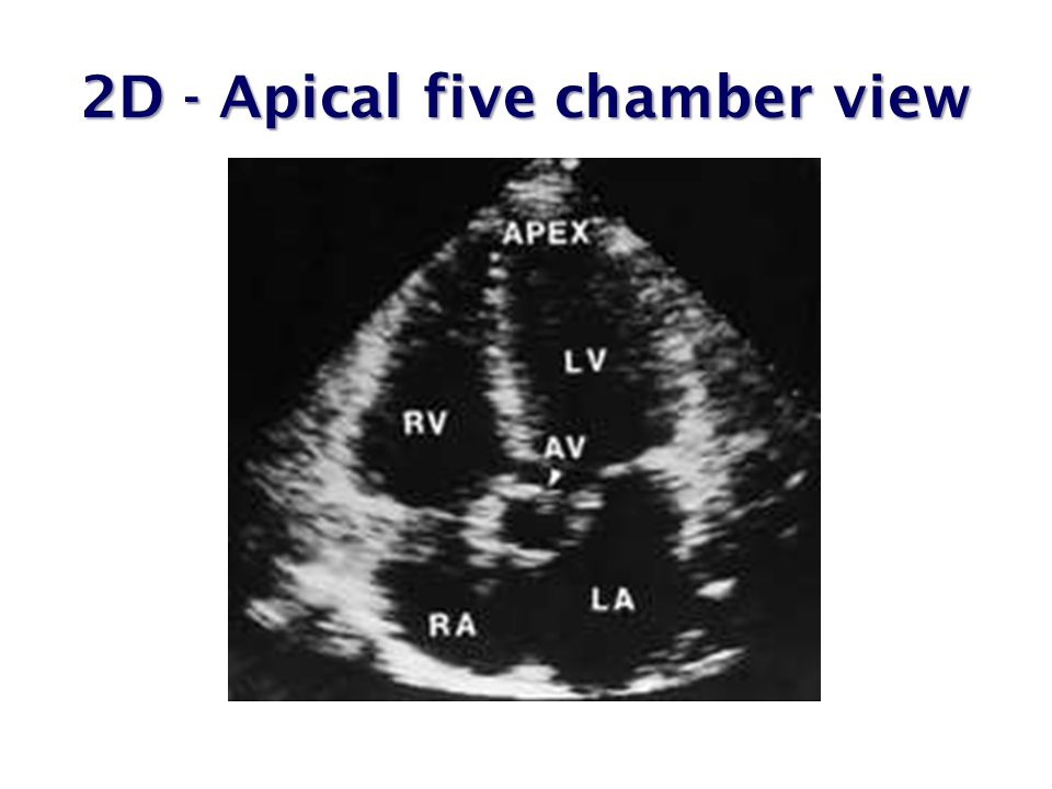 MCQ-3  Characteristic feature of calcific aortic stenosis is ………….
