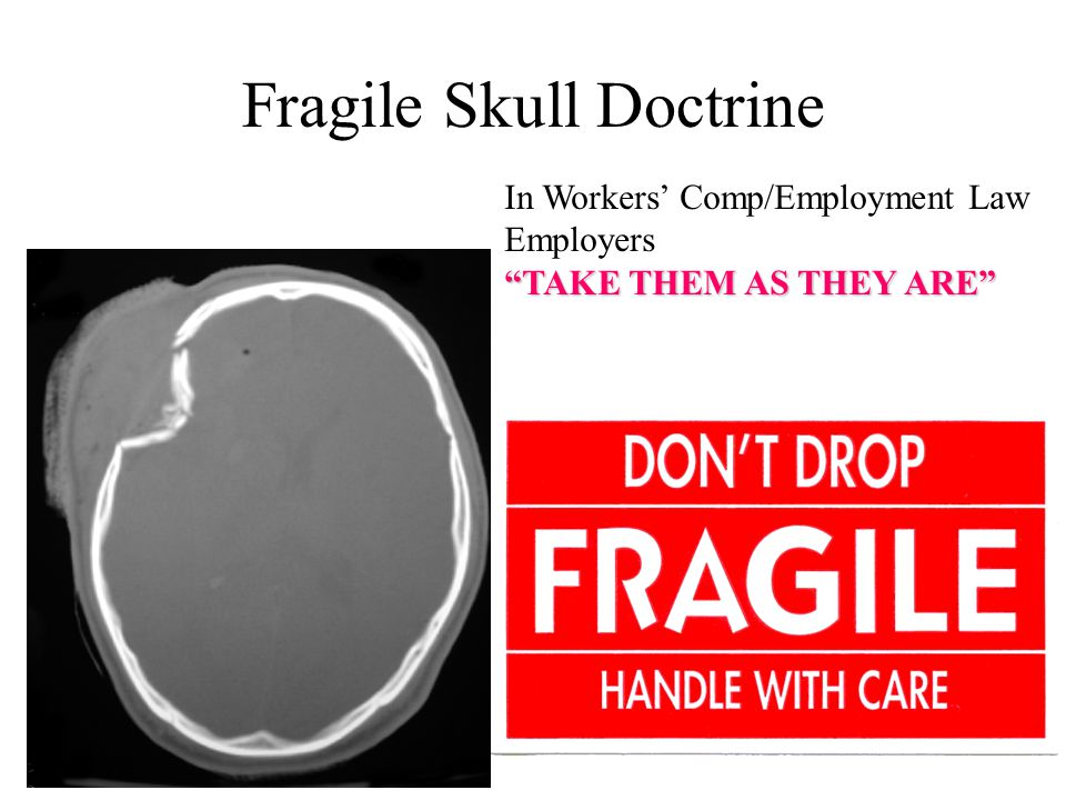 Fragile Skull Doctrine In Workers' Comp/Employment Law Employers TAKE THEM AS THEY ARE