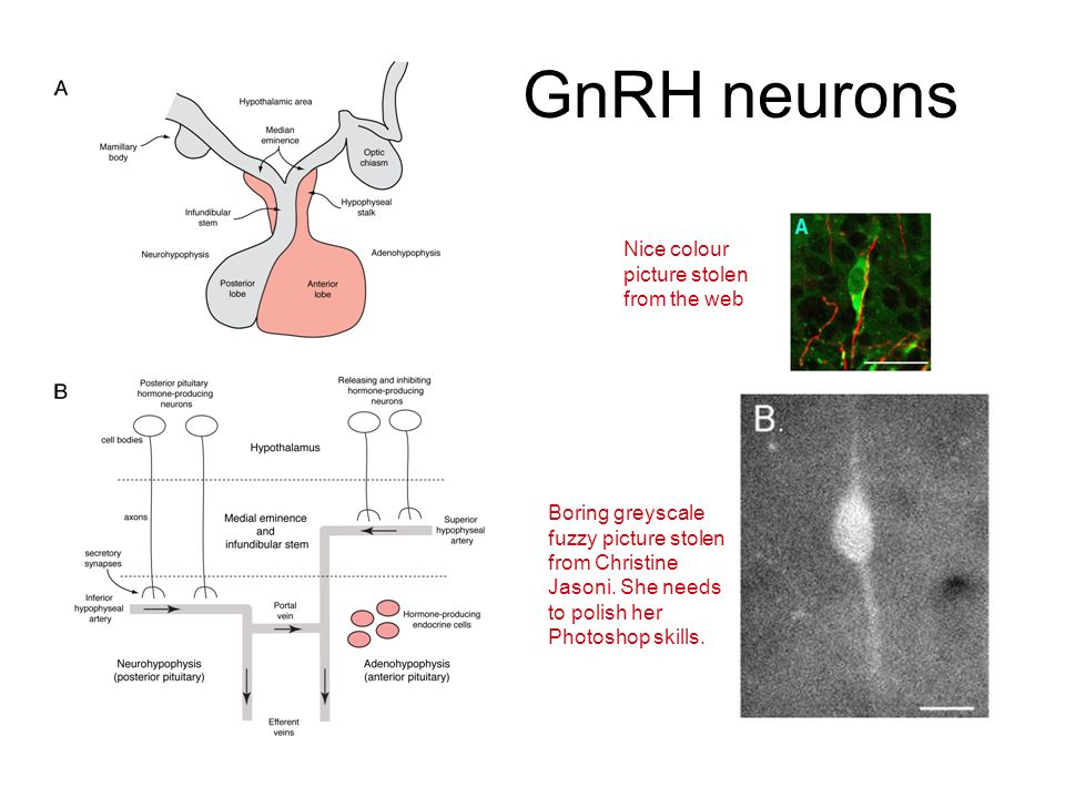 GnRH neurons Nice colour picture stolen from the web Boring greyscale fuzzy picture stolen from Christine Jasoni.