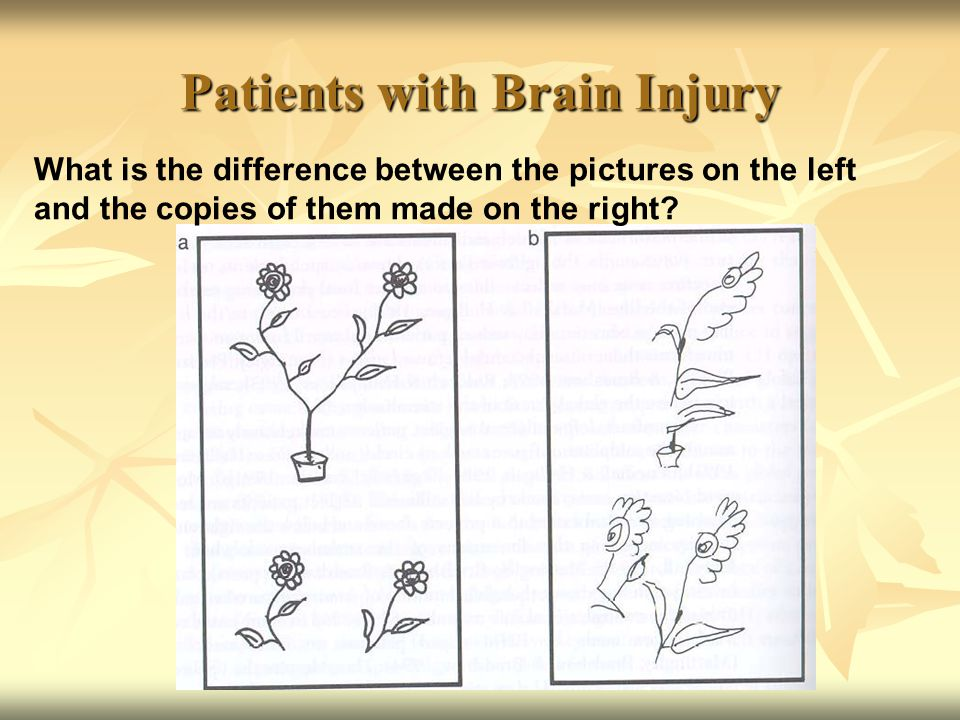 Patients with Brain Injury What is the difference between the pictures on the left and the copies of them made on the right