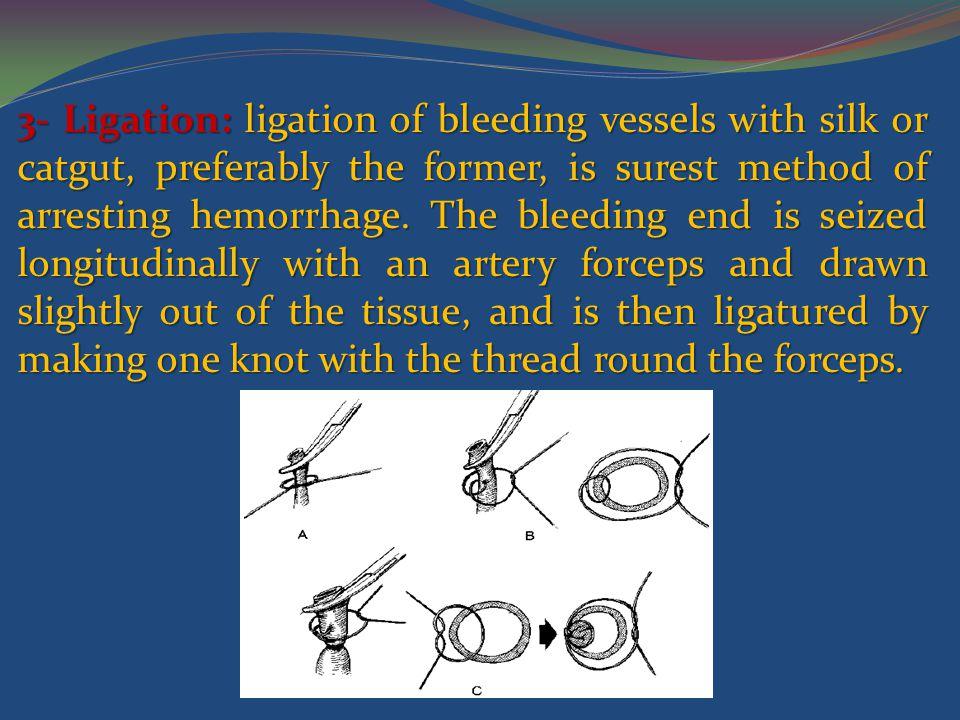 3- Ligation: ligation of bleeding vessels with silk or catgut, preferably the former, is surest method of arresting hemorrhage.