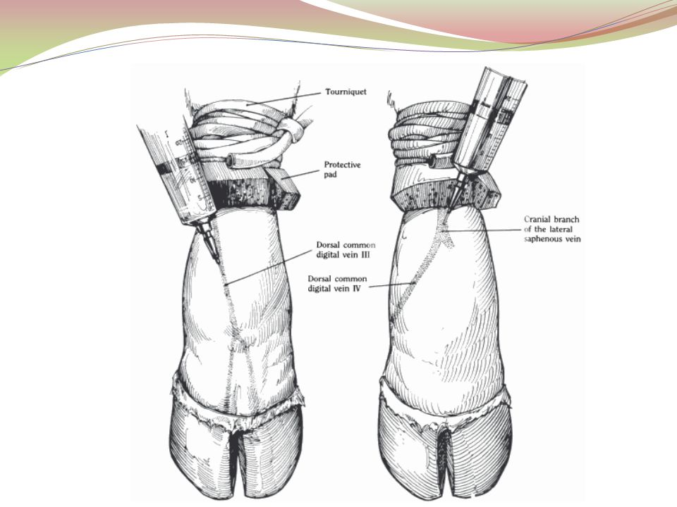 2- The use of Esmarch's Bandage: is an elastic bandage applied from the distal part of the extremity to a point above the seat of operation.