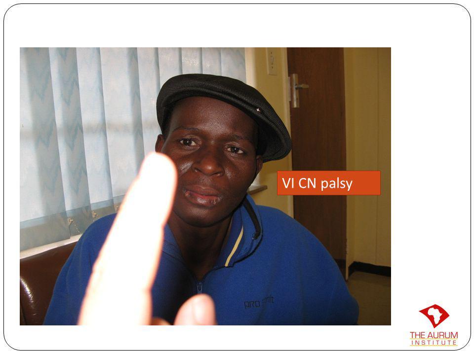 VI CN palsy