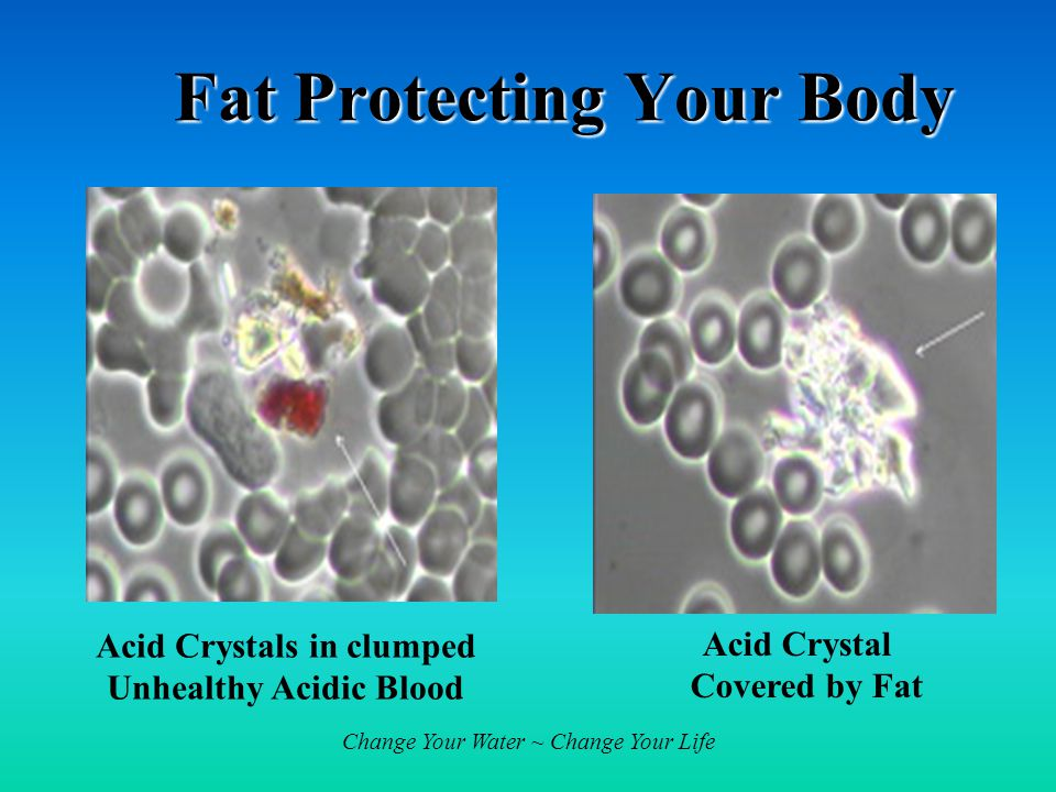 Fat Protecting Your Body Acid Crystals in clumped Unhealthy Acidic Blood Acid Crystal Covered by Fat
