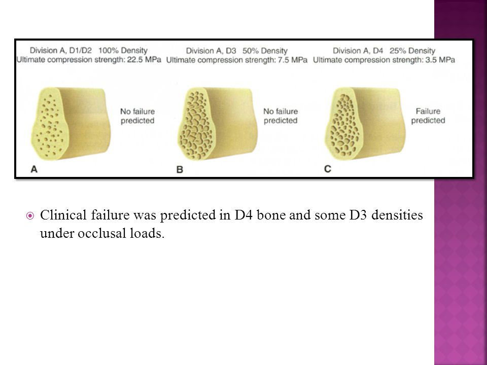  Clinical failure was predicted in D4 bone and some D3 densities under occlusal loads.