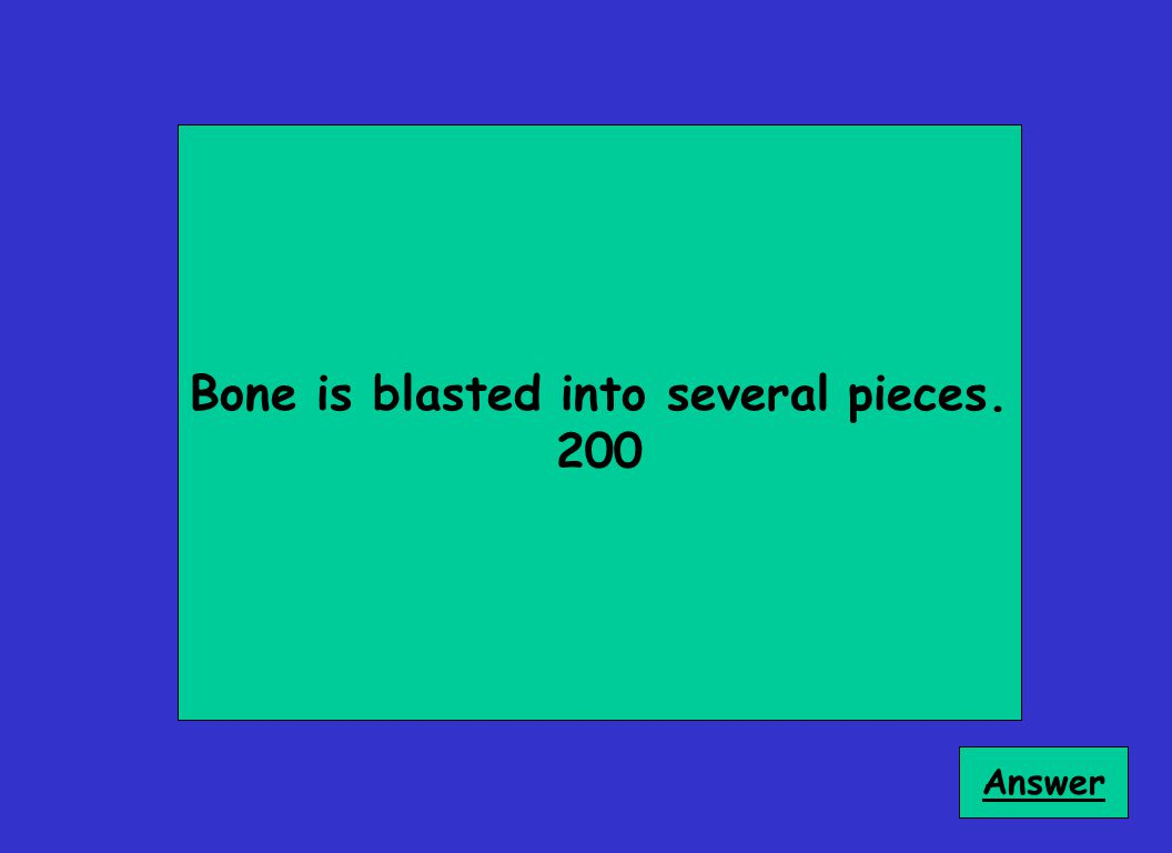 Bone is blasted into several pieces. 200 Answer