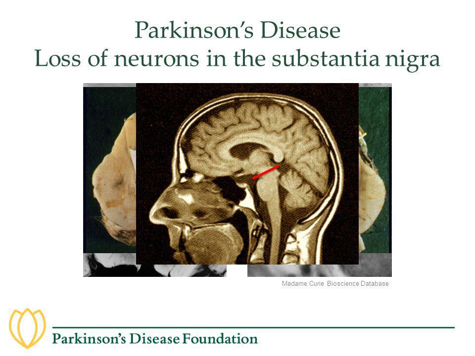 Madame Curie Bioscience Database Parkinson's Disease Loss of neurons in the substantia nigra http://www.urmc.rochester.edu/neuroslides/slide199.html