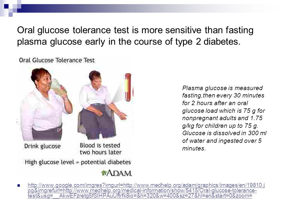 Oral glucose tolerance test is more sensitive than fasting plasma glucose early in the course of type 2 diabetes. http://www.google.com/imgres?imgurl=