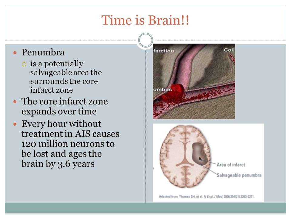 Time is Brain!! Penumbra  is a potentially salvageable area the surrounds the core infarct zone The core infarct zone expands over time Every hour wi