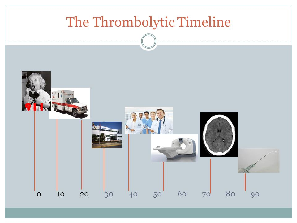 The Thrombolytic Timeline 0 10 20 30 40 50 60 70 80 90 911