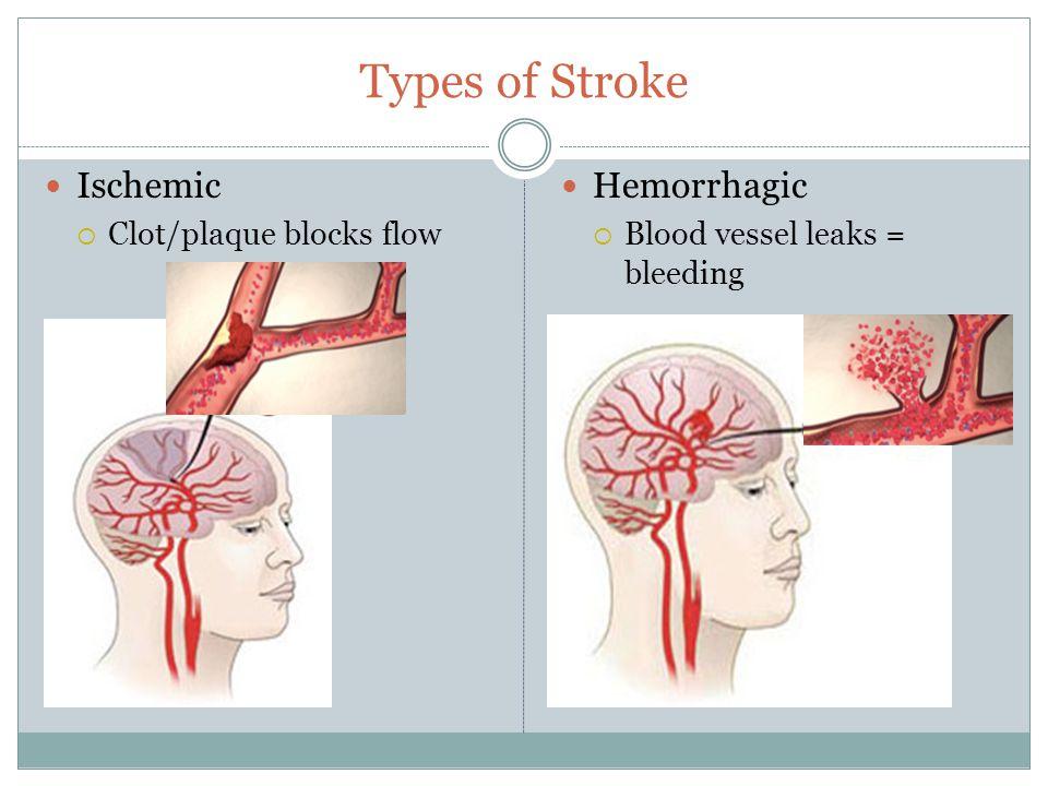 Types of Stroke Ischemic  Clot/plaque blocks flow Hemorrhagic  Blood vessel leaks = bleeding