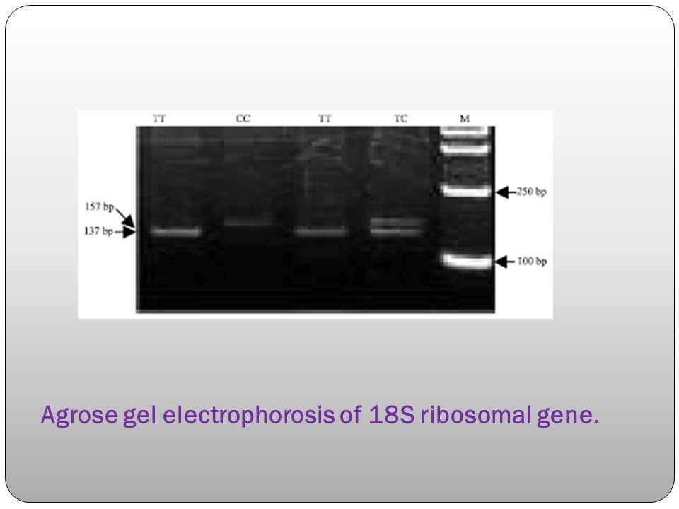 Agrose gel electrophorosis of 18S ribosomal gene.