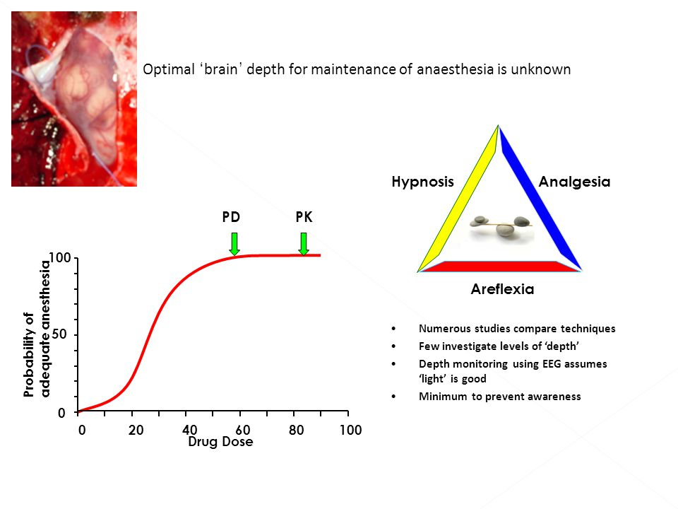 Numerous studies compare techniques Few investigate levels of 'depth' Depth monitoring using EEG assumes 'light' is good Minimum to prevent awareness HypnosisAnalgesia Areflexia 806040201000 Probability of adequate anesthesia 100 Drug Dose PDPK 0 50