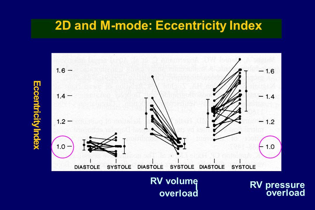 Eccentricity Index RV volume l overload RV pressure overload