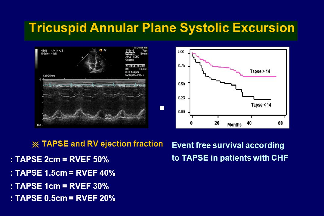 Tricuspid Annular Plane Systolic Excursion ※ TAPSE and RV ejection fraction : TAPSE 2cm = RVEF 50% : TAPSE 1.5cm = RVEF 40% : TAPSE 1cm = RVEF 30% : TAPSE 0.5cm = RVEF 20% Event free survival according to TAPSE in patients with CHF