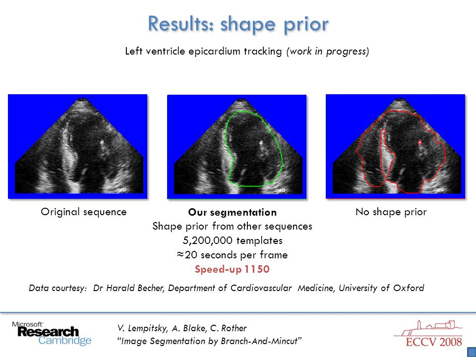"""V. Lempitsky, A. Blake, C. Rother """"Image Segmentation by Branch-And-Mincut"""" Results: shape prior Left ventricle epicardium tracking (work in progress)"""