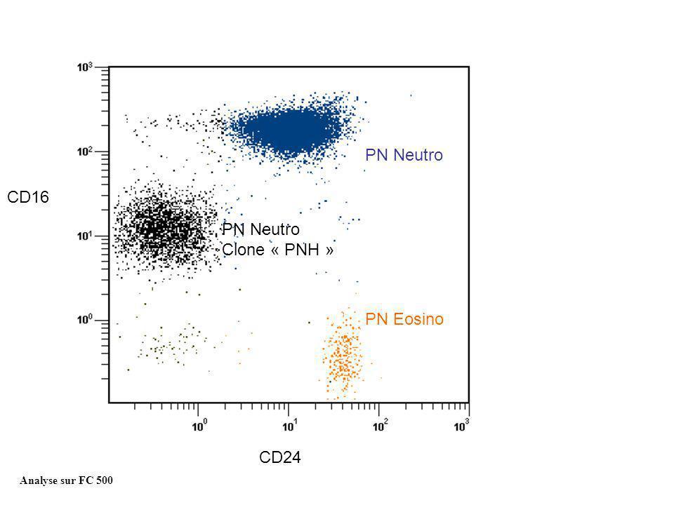 PN Neutro Clone « PNH » PN Eosino Analyse des leucocytes PN Neutro Analyse sur FC 500 CD24 CD16