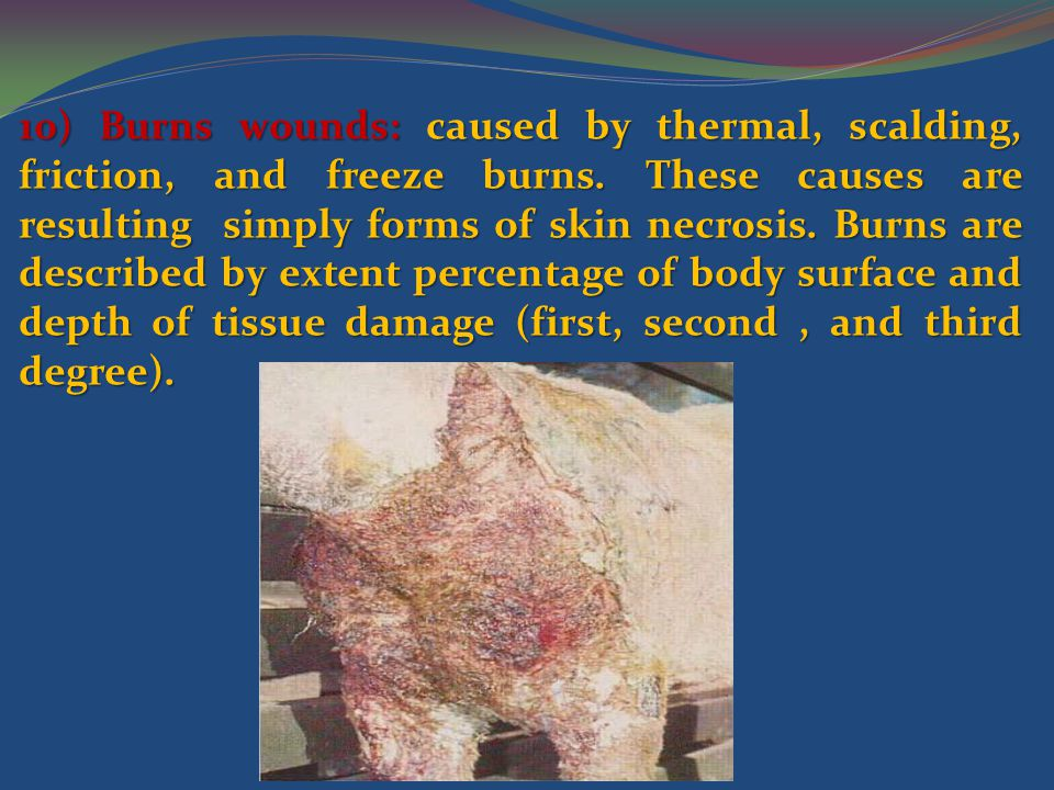 10) Burns wounds: caused by thermal, scalding, friction, and freeze burns.