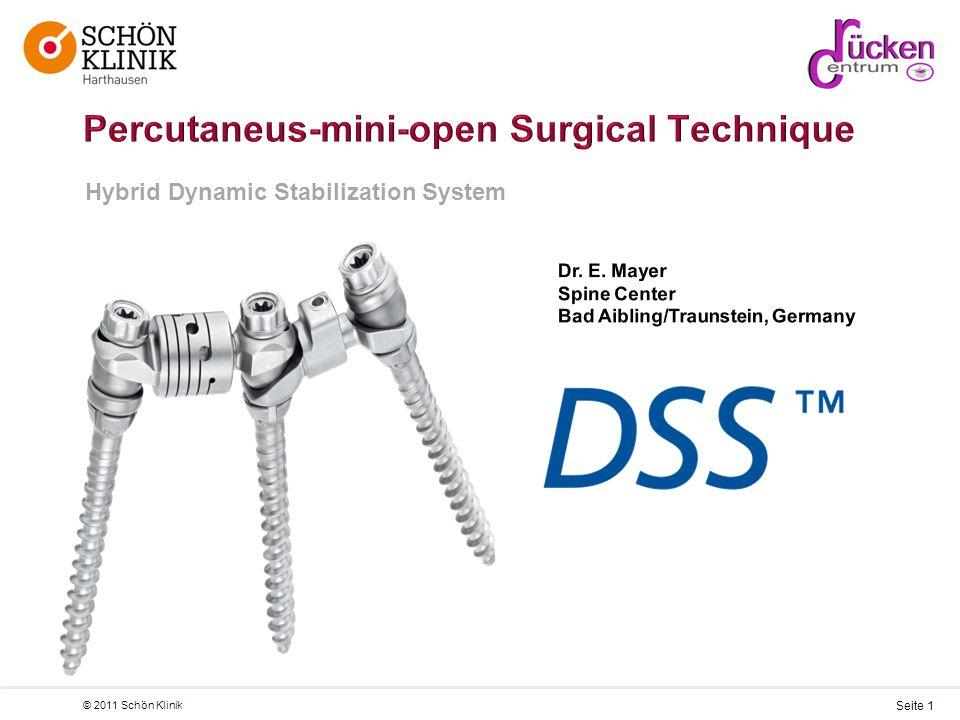 Seite 1 © 2011 Schön Klinik Hybrid Dynamic Stabilization System