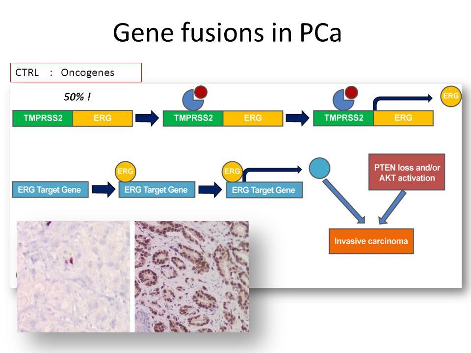 Gene fusions in PCa CTRL : Oncogenes 50% !