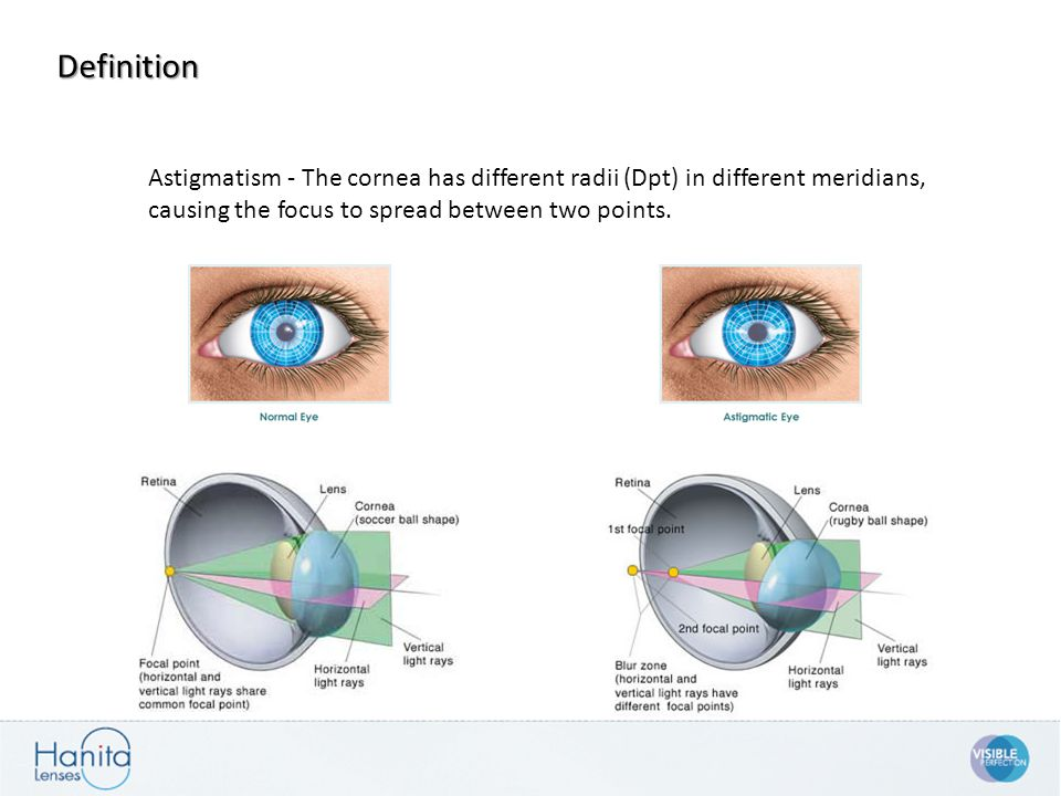 Astigmatism - The cornea has different radii (Dpt) in different meridians, causing the focus to spread between two points. Definition