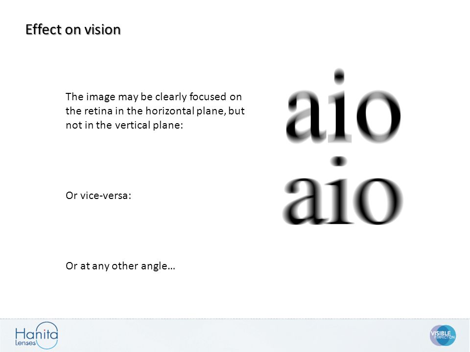 Effect on vision The image may be clearly focused on the retina in the horizontal plane, but not in the vertical plane: Or vice-versa: Or at any other