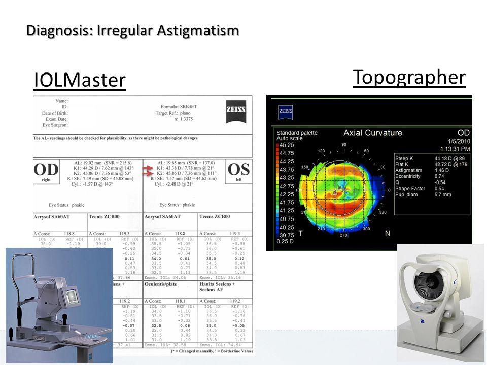 IOLMaster Topographer Diagnosis: Irregular Astigmatism