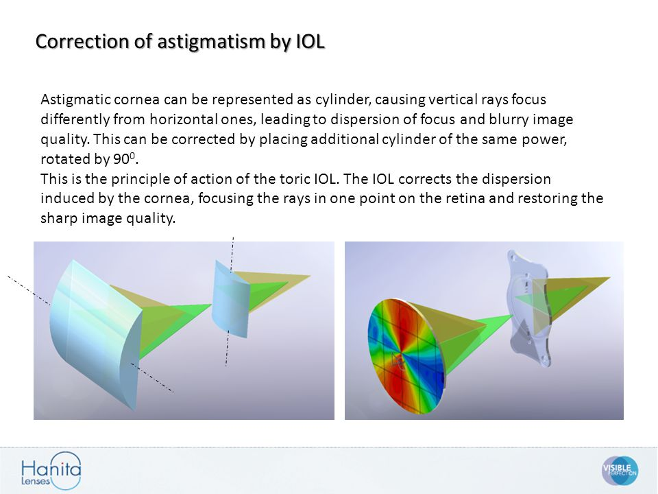 Astigmatic cornea can be represented as cylinder, causing vertical rays focus differently from horizontal ones, leading to dispersion of focus and blu